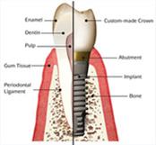 s_implant_08